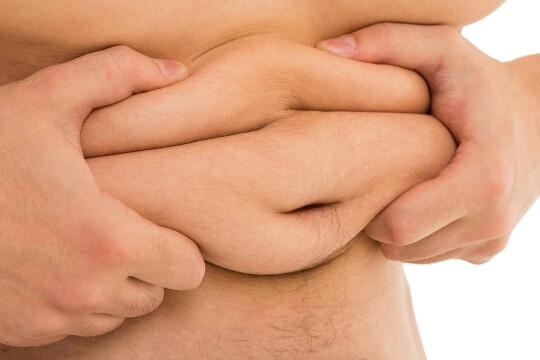 Obesity 8 associated diseases